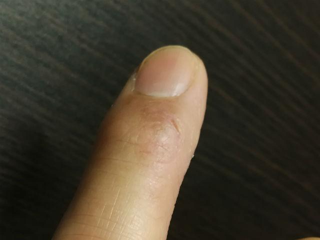 指関節ひび割れ